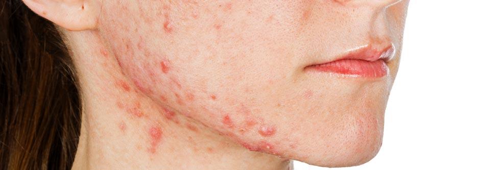 spots on chin